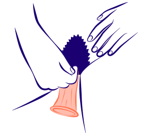 Préservatif interne poussé dans le vagin